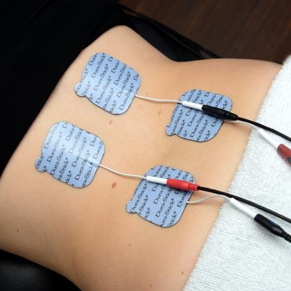 Électrothérapie, interférentiel, TENS